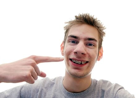Young man gives a huge smile showing off his braces on his crooked teeth. Isolated on white background with room for your text Stock Photo - 6500812