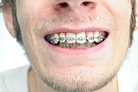 crooked teeth: Closeup of a mans teeth with braces on Stock Photo