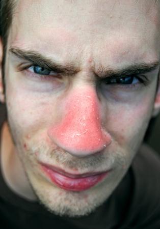 이 불행한 고통스러운 젊은 남성은 코에 붉은 햇볕에 화상을 입었고 붉은 피부가 벗겨지고 있습니다.