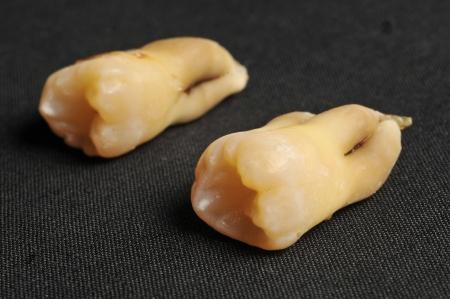 molares: Primer plano de dos molares humanos adultos amarillentas sobre fondo de tela negro Foto de archivo