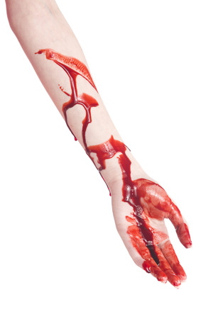 harmed: Close up One Bloody Arm and Hand of a Woman with Cuts, Isolated on White Background.