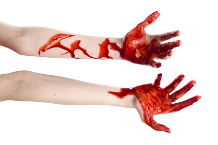 Close up One Bloody Arm and Hand of a Woman with Cuts, Isolated on White Background.