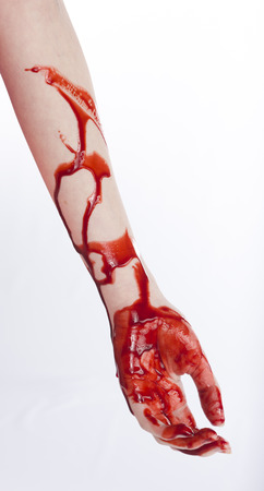 wounds: Close up One Bloody Arm and Hand of a Woman with Cuts, Isolated on White Background.