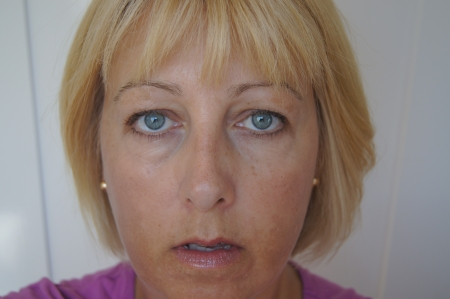 spot: Portrait of middle aged woman showing close up of sun damaged skin  Stock Photo