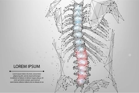 Abstract mesh line and dot physiotherapy human spine. Low poly Pain area surgery operation. Polygonal render female back hernia vector illustration
