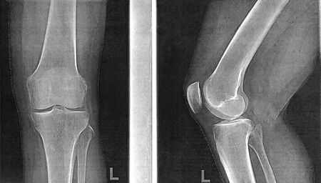 X-rays of knee joint in two projections