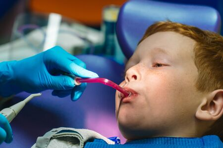 Scared red-haired boy crying at reception at dentist in dental chair. Pediatric dentistry