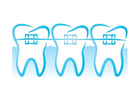 dientes caricatura: teeth_braces (39). jpg