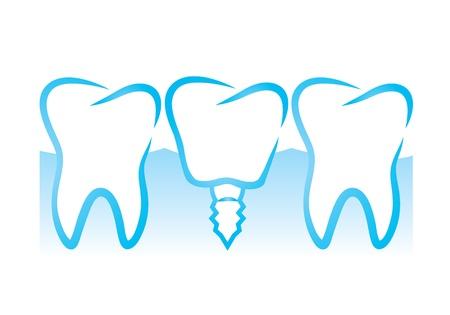 dental implant(39).jpg