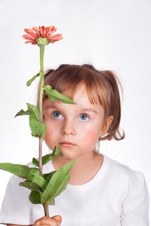 symptom: Little girl with atopic dermatitis symptom on skin of cheeks holding the flower. Pollen allergy.
