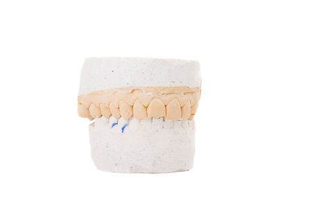 plaster mould: Series. teeth plaster cast. Close up on white background Stock Photo