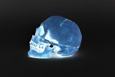 parietal: Human Skull - Stock Image