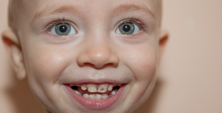 A child with a black hole in her teeth, her teeth in a little smiling boy