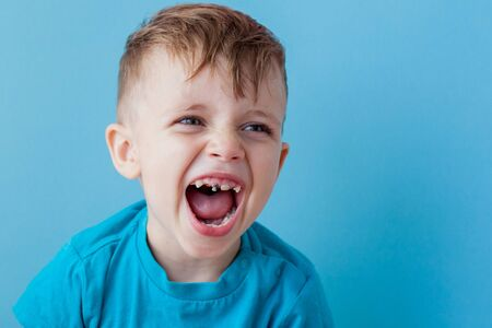 Extensive early dental caries and misaligned and spare incisor teeth in upper jaw. Stock Photo