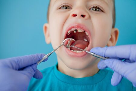 Dentist examining boys teeth on blue background. A small patient in the dental chair smiles. Dantist treats teeth. close up view of dentist treating teeth of little boy in dentist office