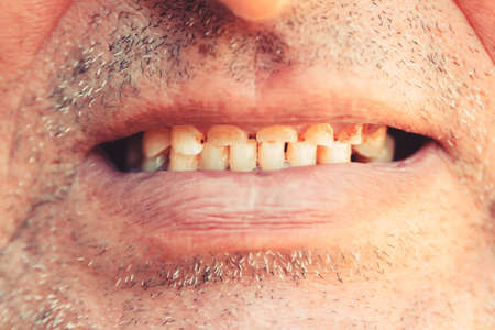 Smiling mouth of a man with crooked yellow teeth close-up. Bad teeth, close up. Smoker with bad teeth.