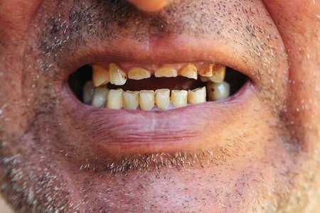 Bad teeth, close up. Smoker with bad teeth. Unhealthy teeth, caries, missed teeth.