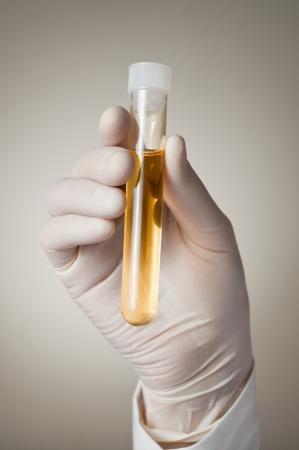 urinalysis: Medico in possesso di un flacone di campione di urina