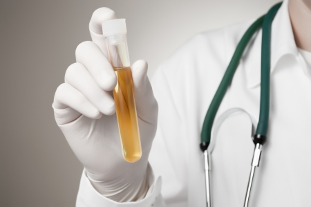specimen testing: Doctor que sostiene una botella de muestra de orina