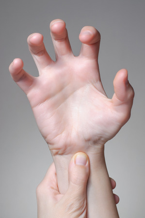 cramp: A young woman massaging her painful wrist