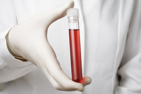 Doctor holding a bottle of blood sample photo