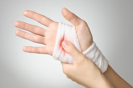 hemorragias: Mano dañada con bloody gasa vendaje blanco