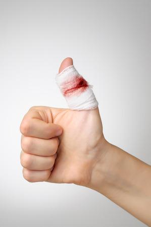hemorragias: Dedo lesionado con vendaje de gasa sangrienta