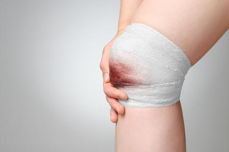 accident body: Injured painful knee with bloody gauze bandage