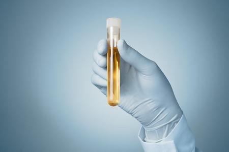 Doctor holding a bottle of urine sample