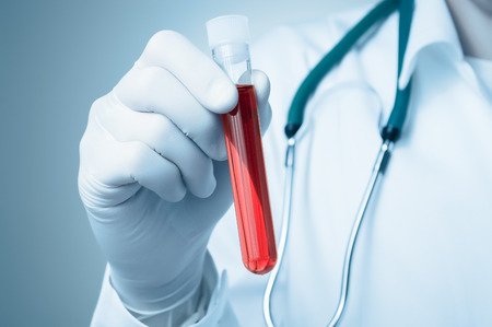 testing: Hand of a doctor holding a bottle of blood sample Stock Photo