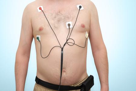 Ein Mann mit Holter-Überwachungseinrichtung Standard-Bild - 64221928