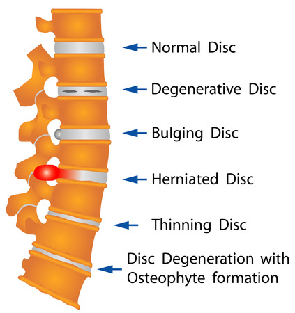 Spine conditions  Degenerative Disc  Bulging Disc  Herniated Disc  Thinning Disc  Disc Degeneration with Osteophyte formation Vector