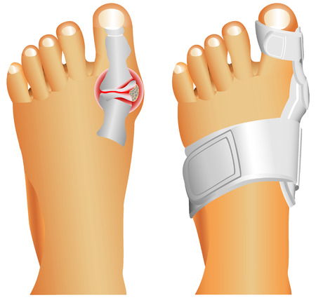 toe: Big toe injury  Support for foot or big toe injury  Hallufix Hallux Valgus Splint  Bunion, Hallux valgus, popularly known as Bunion  Illustration