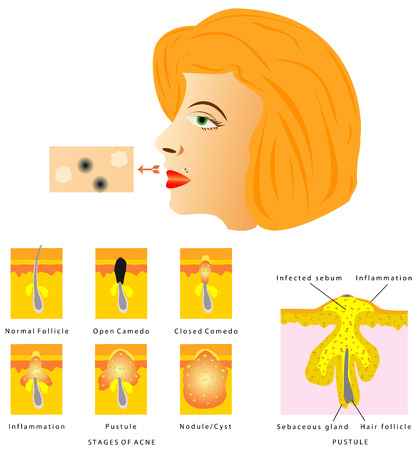 Formation of skin acne  Blackhead, Acne, Pustule  Stages of Acne on white background