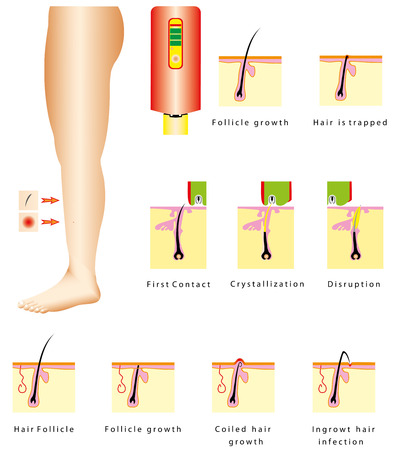 hair cut: Epilation  Ingrown hair infection  Coiled hair growth  Hair is trapped  Laser hair removal  Hair Removal devices