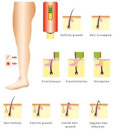 depilacion: Infecci�n cabello Depilaci�n Pelos encarnados en espiral de crecimiento del pelo es atrapado dispositivos Depilaci�n del vello con l�ser Vectores