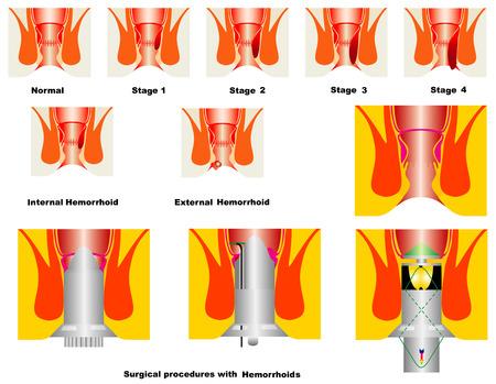 Hemorrhoid  Anatomical drawing showing internal and external hemorrhoids   Vector
