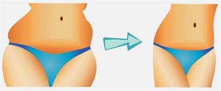 mujer celulitis: Mujer Belleza pérdida de peso de la cintura antes de después de la dieta y la salud Vectores