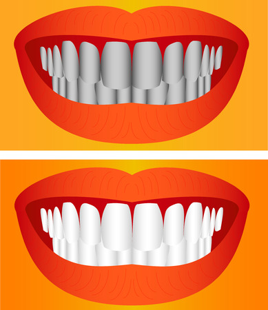 fluorine: Care of teeth  Beautiful young woman teeth before and after whitening