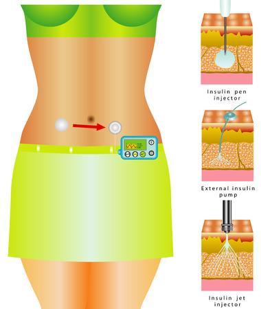 rehab: Glucose Monitoring External insulin pump Illustration