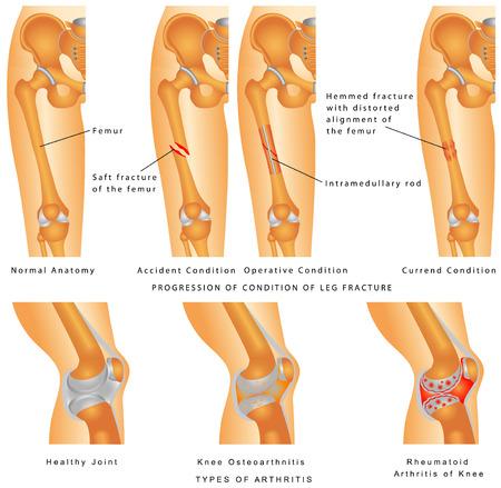 Breuken van dijbeen Hemmed breuk met vervormde uitlijning van het dijbeen Fixatie van dijbeenbreuk met plaatsing van Intramedullaire Rod vormen van artritis - artrose, reumatoïde artritis Vector Illustratie