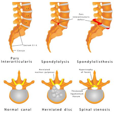 Fractura de la columna espondilolisis espondilolistesis es un defecto en el anillo óseo que comprende el desplazamiento de la columna vertebral de una vértebra lumbar, que ocurre con mayor frecuencia después de una ruptura o fractura Ilustración de vector