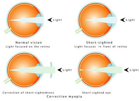 összpontosított: Myopia normál látás, a fény középpontjában a retina Short - látó, fény középpontjában előtt retina, így a szem értelmezi az elmosódott képet korrekció a rövidlátás korrekciója rövid - távollátás Illusztráció