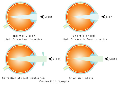 correction: Myopia  Normal vision, light focused on the retina  Short - sighted, light focused in front of retina, so the eye interprets a blurred image  Correction of myopia  Correction of short - sightedness Illustration