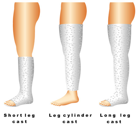 Leg casts  Long leg casts are applied from the upper thigh to the foot  These casts are used for thigh, knee, or lower leg fractures  Illustration