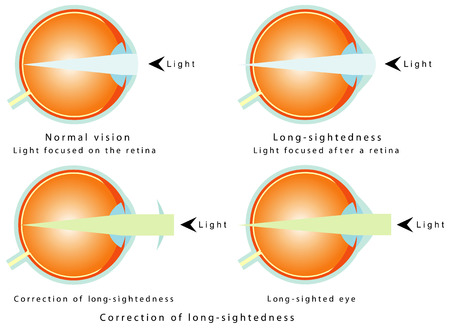 common vision: Hyperopia  Normal vision, light focused on the retina  Long-sightedness, light focused after a retina  Correction of long-sightedness  Long - sighted eye