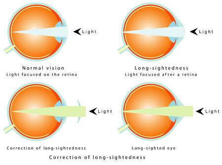 összpontosított: Távollátás normál látás, a fény középpontjában a retina Long távollátás, könnyű fókuszált után retina korrekciója hosszú távollátás Long - látó szem