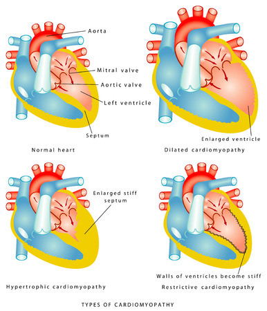 Diseases of the Heart Muscle - Types of cardiomyopathy  the walls of the ventricles thicken and become stiff Vector