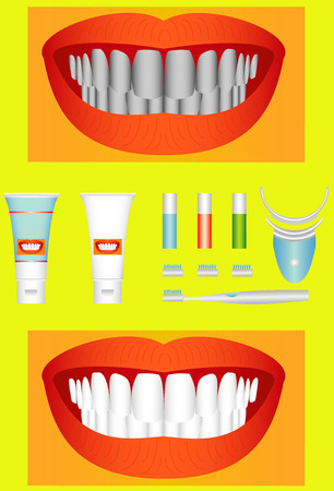 whitening: Bleaching of teeth  Beautiful young teeth before and after whitening  Illustration