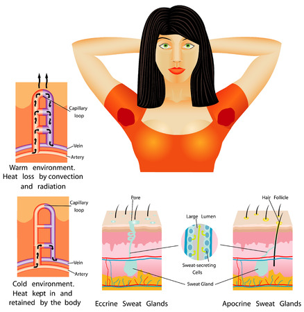 sebaceous gland: Armpit sweat  Woman sweating very badly under armpit on white